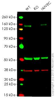 Western blot - Anti-c-Kit antibody [YR145] (ab32363)