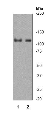 Western blot - Anti-PARP1 antibody [Y17] (ab32378)