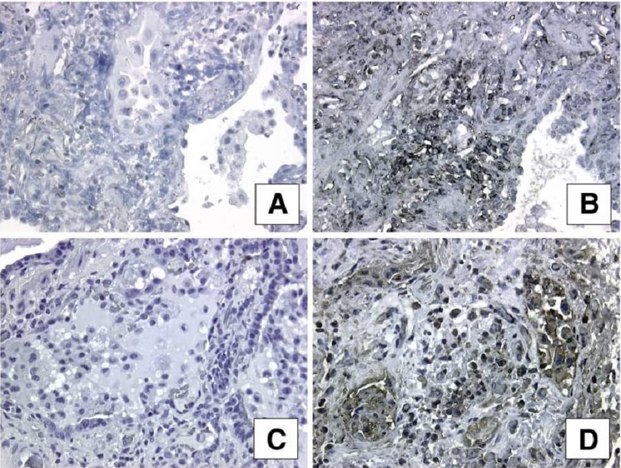 Immunohistochemistry (Formalin/PFA-fixed paraffin-embedded sections) - Anti-Argonaute-2 antibody - ChIP Grade (ab32381)