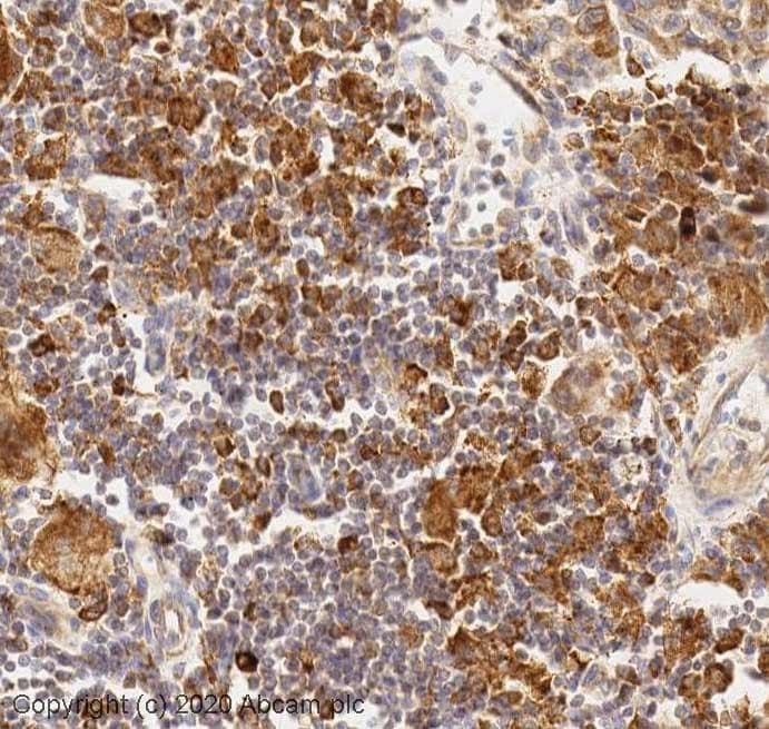 Immunohistochemistry (Formalin/PFA-fixed paraffin-embedded sections) - Anti-Argonaute-2 antibody (ab32381)