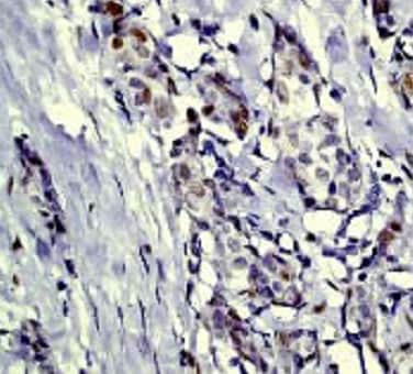 Immunohistochemistry (Formalin/PFA-fixed paraffin-embedded sections) - Anti-c-Jun (phospho S63) antibody [Y172] (ab32385)