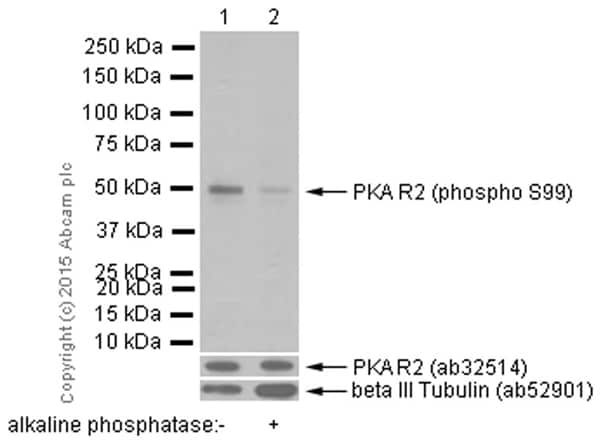 Western blot - Anti-PKA R2/PKR2 (phospho S99) antibody [E151] (ab32390)