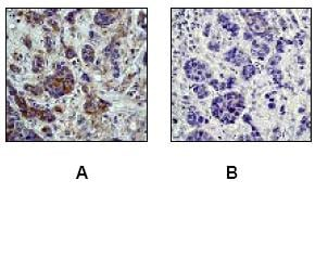 Immunohistochemistry (Formalin/PFA-fixed paraffin-embedded sections) - Anti-PKA R2/PKR2 (phospho S99) antibody [E151] (ab32390)