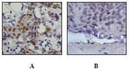 Immunohistochemistry (Formalin/PFA-fixed paraffin-embedded sections) - Anti-Estrogen Receptor alpha (phospho S118) antibody [E91] (ab32396)