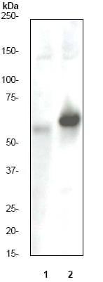 Western blot - Anti-Estrogen Receptor alpha (phospho S118) antibody [E91] (ab32396)