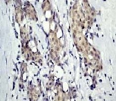 Immunohistochemistry (Formalin/PFA-fixed paraffin-embedded sections) - Anti-delta 1 Catenin/CAS (phospho Y228) antibody [E205] (ab32403)