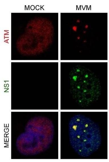 Immunocytochemistry/ Immunofluorescence - Anti-ATM antibody [Y170] (ab32420)