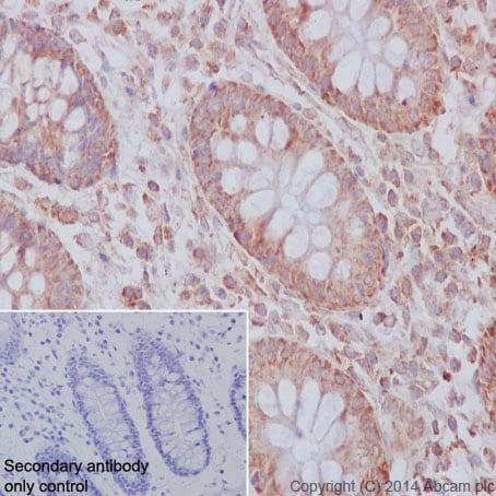 Immunohistochemistry (Formalin/PFA-fixed paraffin-embedded sections) - Anti-CBL + CBLB antibody [YE315] (ab32425)