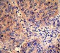 Immunohistochemistry (Formalin/PFA-fixed paraffin-embedded sections) - Anti-CBL (phospho Y774) antibody [E160] (ab32446)