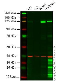 Western blot - Anti-PYK2 antibody [E354] (ab32448)