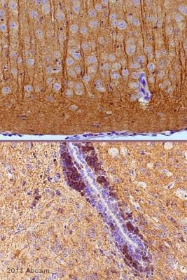 Immunohistochemistry (Formalin/PFA-fixed paraffin-embedded sections) - Anti-MAP2 antibody (ab32454)