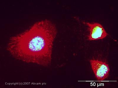 Immunocytochemistry/ Immunofluorescence - Anti-eIF4A3 antibody (ab32485)