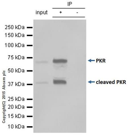 Immunoprecipitation - Anti-PKR antibody [Y117] (ab32506)