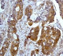 Immunohistochemistry (Formalin/PFA-fixed paraffin-embedded sections) - Anti-PKR antibody [Y117] (ab32506)
