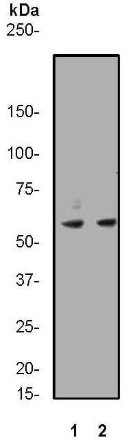 Western blot - Anti-CCR3 antibody [Y31] (ab32512)