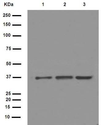 Western blot - Anti-IKB alpha antibody [E130] (ab32518)