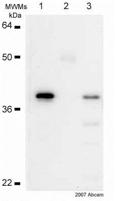 Immunoprecipitation - Anti-IKB alpha antibody [E130] (ab32518)