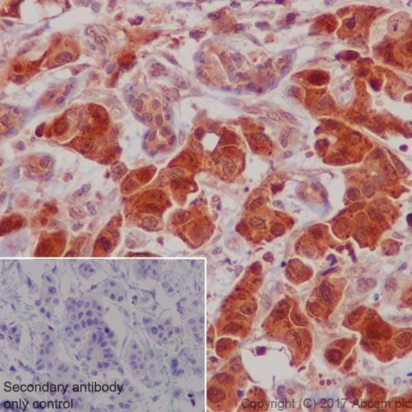 Immunohistochemistry (Formalin/PFA-fixed paraffin-embedded sections) - Anti-S6K1 antibody [E343] (ab32529)