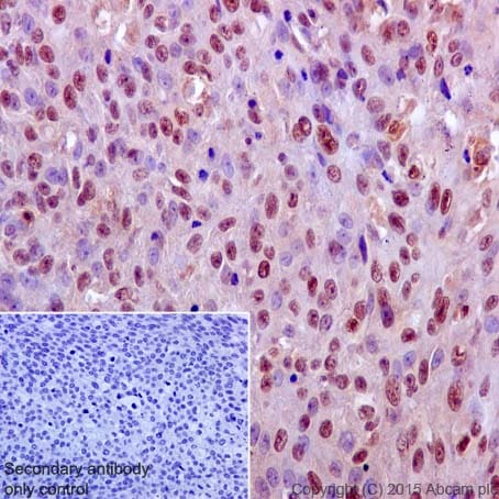 Immunohistochemistry (Formalin/PFA-fixed paraffin-embedded sections) - Anti-ERK1 antibody [Y72] (ab32537)
