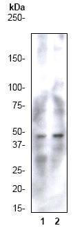 Western blot - Anti-CCR9 antibody [E99] (ab32556)
