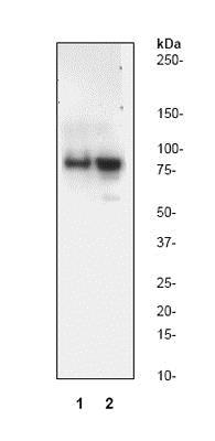 Western blot - Anti-Cleaved PARP1 antibody [Y34] (ab32561)