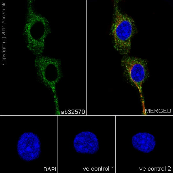 Immunocytochemistry/ Immunofluorescence - Anti-PDGFR beta antibody [Y92] - C-terminal (ab32570)