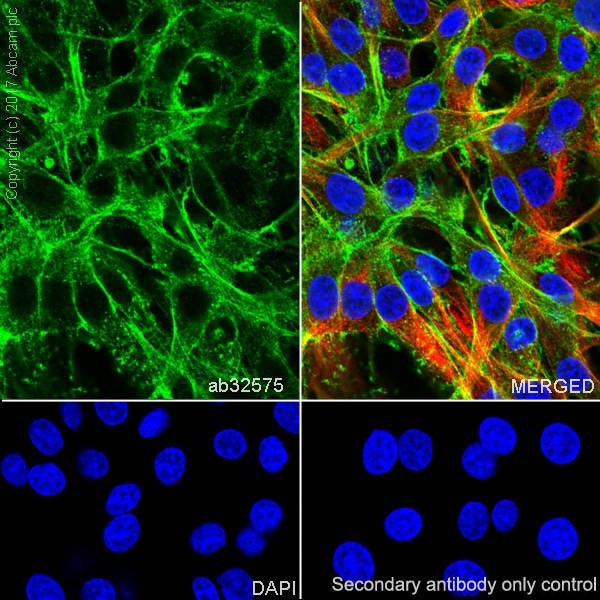 Immunocytochemistry/ Immunofluorescence - Anti-alpha smooth muscle Actin antibody [E184] (ab32575)