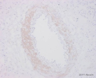 Immunohistochemistry (Frozen sections) - Anti-alpha smooth muscle Actin antibody [E184] (ab32575)