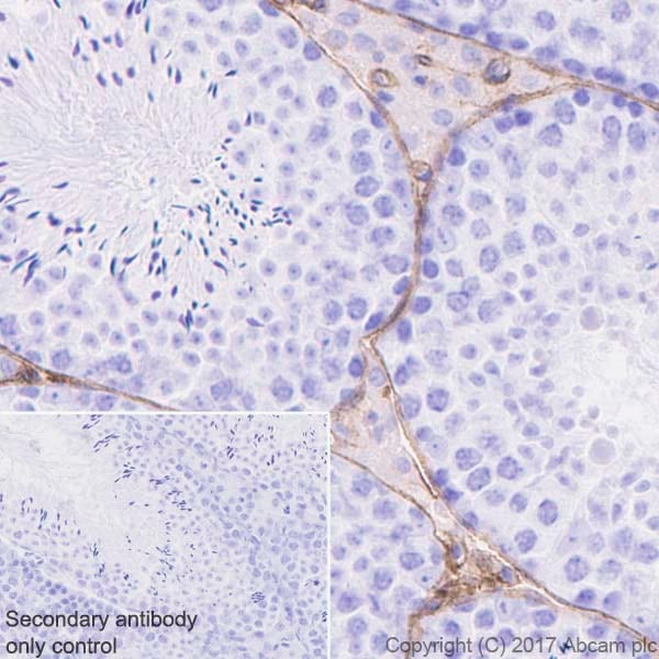 Immunohistochemistry (Formalin/PFA-fixed paraffin-embedded sections) - Anti-Caveolin-1 antibody [E249] - Caveolae Marker (ab32577)