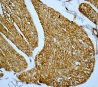 Immunohistochemistry (Formalin/PFA-fixed paraffin-embedded sections) - Anti-Caveolin-1 antibody [E249] - Caveolae Marker (ab32577)