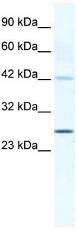 Western blot - Anti-Connexin 30.3 / GJB4 antibody (ab32598)
