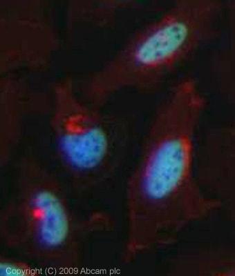 Immunocytochemistry/ Immunofluorescence - Anti-RNF20 antibody (ab32629)