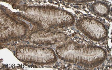 Immunohistochemistry (Formalin/PFA-fixed paraffin-embedded sections) - Anti-CYP1B1 antibody (ab32649)