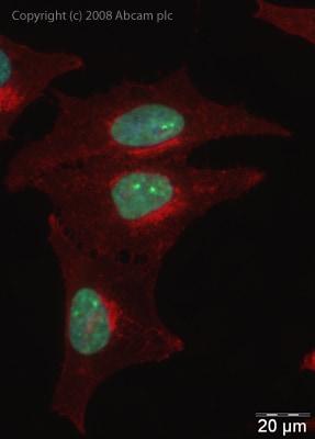 Immunocytochemistry/ Immunofluorescence - Anti-hnRNP L antibody (ab32680)