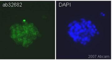 Immunocytochemistry/ Immunofluorescence - Anti-Nucleostemin antibody (ab32682)