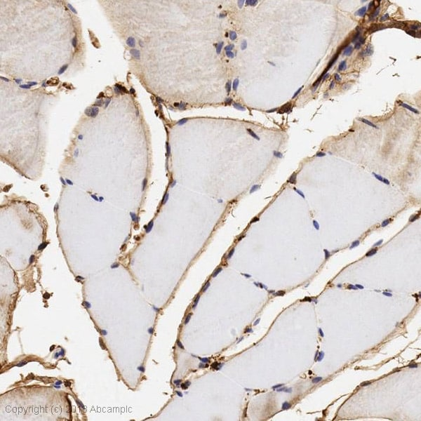 Immunohistochemistry (Formalin/PFA-fixed paraffin-embedded sections) - Anti-Sulfatase 1/SULF1 antibody (ab32763)