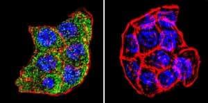 Immunocytochemistry/ Immunofluorescence - Anti-TPX2 antibody [18D5-1] (ab32795)