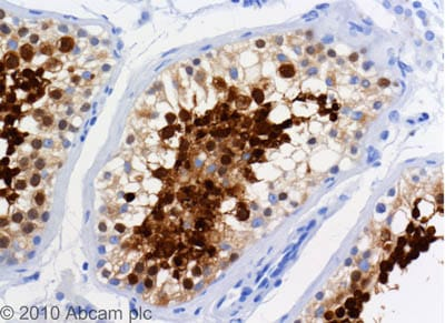 Immunohistochemistry (Formalin/PFA-fixed paraffin-embedded sections) - Anti-TPX2 antibody [18D5-1] (ab32795)