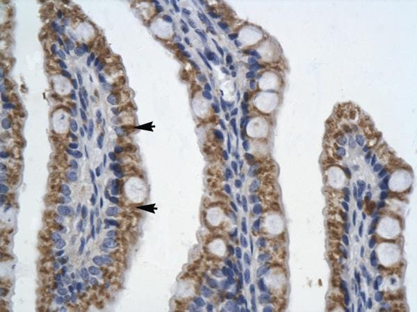 Immunohistochemistry (Formalin/PFA-fixed paraffin-embedded sections) - Anti-PITX2 antibody (ab32832)
