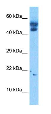 Western blot - Anti-TCF21 antibody (ab32981)