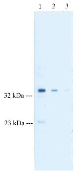 Western blot - Anti-Tristetraprolin/TTP antibody (ab33058)