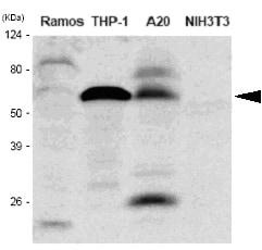 Western blot - Anti-IRF5 antibody [10T1] (ab33478)