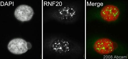 Immunocytochemistry/ Immunofluorescence - Anti-RNF20 antibody (ab33500)