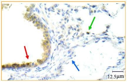 Immunohistochemistry (Formalin/PFA-fixed paraffin-embedded sections) - Anti-TrkB antibody (ab33655)