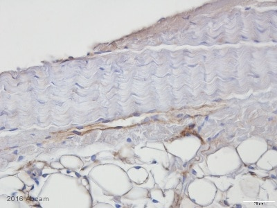 Immunohistochemistry (Formalin/PFA-fixed paraffin-embedded sections) - Anti-LYVE1 antibody (ab33682)