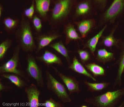 Immunocytochemistry/ Immunofluorescence - Anti-Glucose Transporter GLUT4 antibody (ab33780)