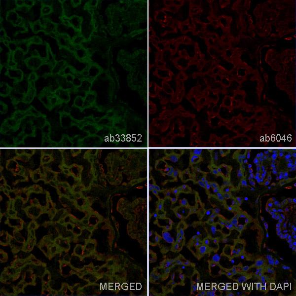 Immunohistochemistry (Frozen sections) - Anti-CD47 antibody [OX-101] (ab33852)