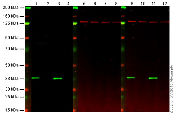 Western blot - Anti-MKK6 antibody [EP557Y] (ab33866)