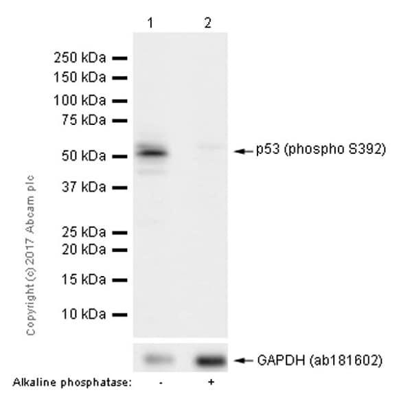 Western blot - Anti-p53 (phospho S392) antibody [EP155Y] (ab33889)