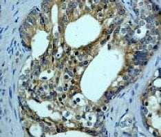 Immunohistochemistry (Formalin/PFA-fixed paraffin-embedded sections) - Anti-BRAF antibody [EP152Y] (ab33899)